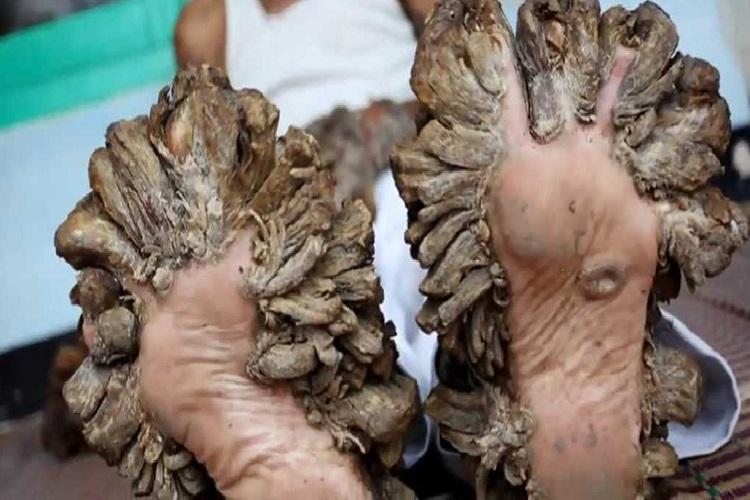 Meet the worlds fourth Tree man who has branches growing out of his hands and feet