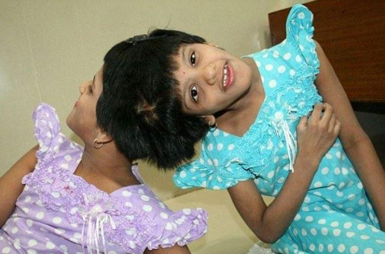 Conjoined twins broken promises Painful story of Veena and Vani still awaiting help