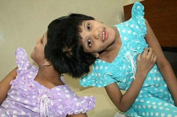 Siamese twins shifted from Hyderabad hospital to State Home